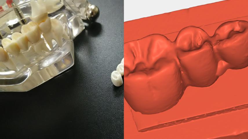 【3Dスキャンサービス】歯型模型データ作成